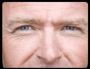 chirurgie esthetique yeux medecine plastique yeux et chirurgie esthetique yeux pour l 39 homme. Black Bedroom Furniture Sets. Home Design Ideas